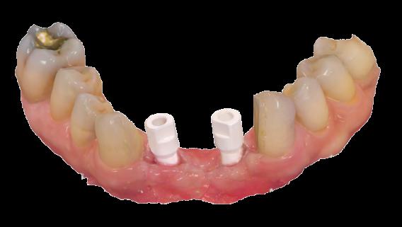 3shape Trios Abtments, implant bridges and bars