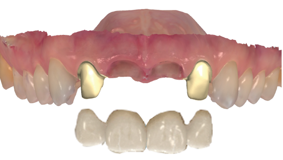 3shape Trios Temporary crowns and virtual diagnostic wax-ups